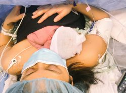 C-Section Recovery Essentials